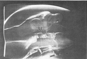 Vzácný záběr z výstupu, umístění batohu na stehnech je jasně zřetelné